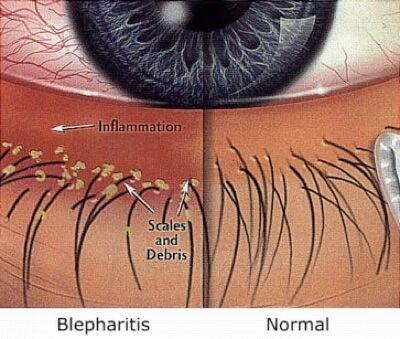 oorzaak van ooglidontsteking