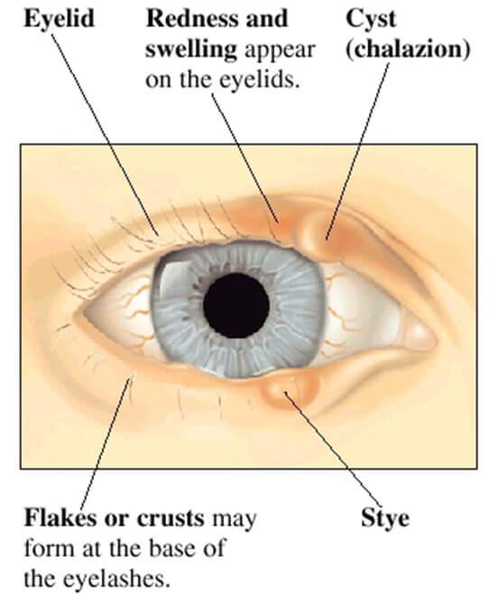 oorzaak en gevolg van cyste in de oog