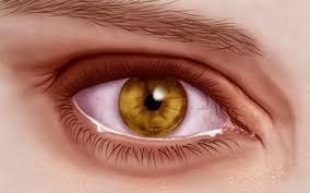 gevolg en oorzaak van droge ogen